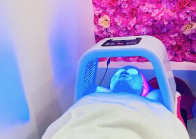 Microneedling course with LED therapy
